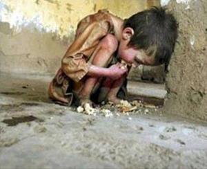 Un niño desnutrido en la India.